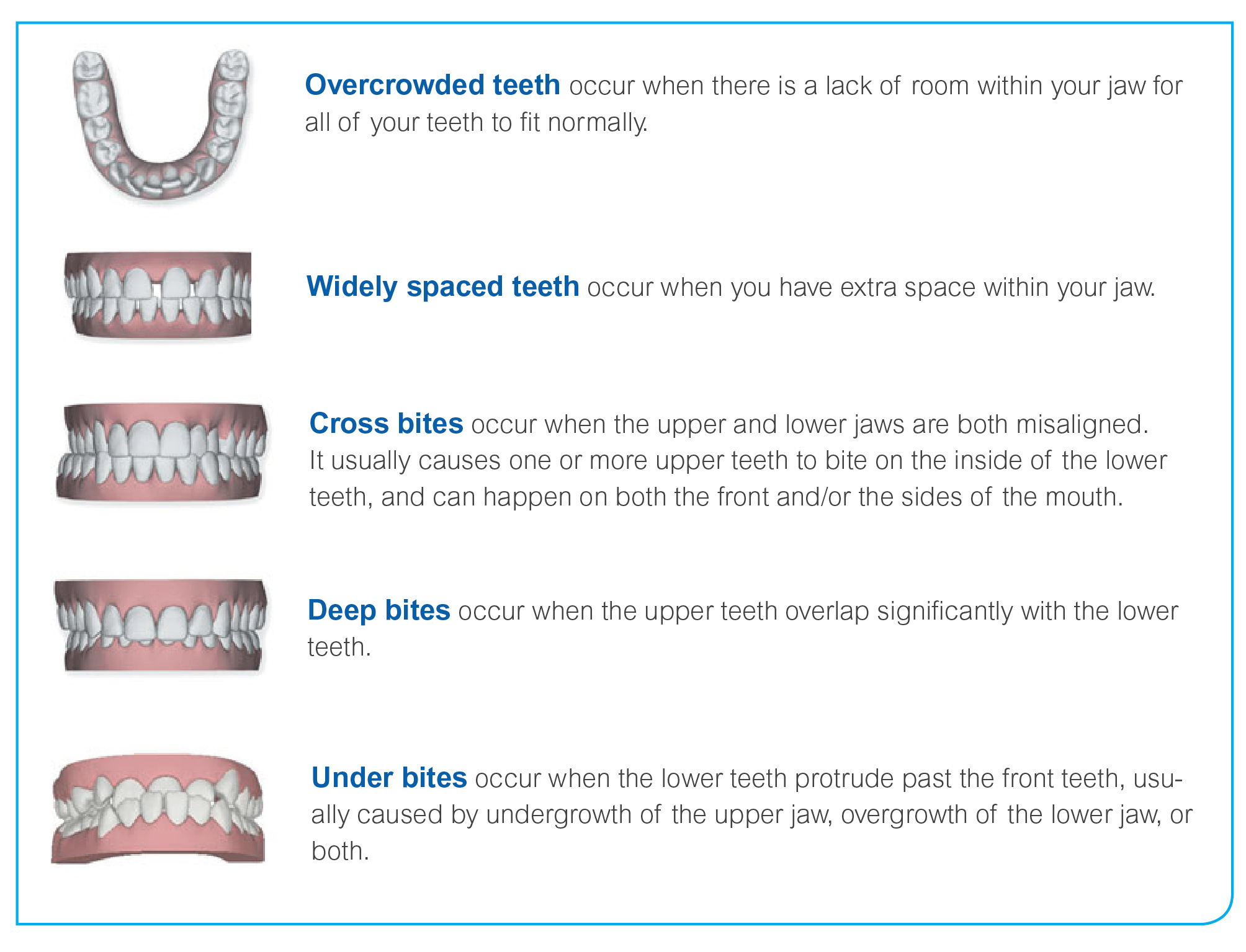 Invisalign Barnes London