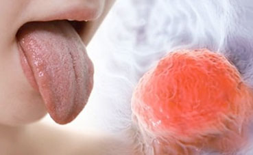 Tongue Cancer Warning - the Symptoms you Shouldn't be Ignoring