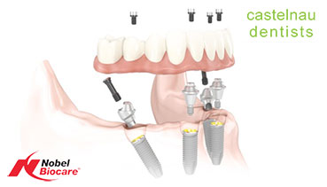 What are All-on-4 Dental Implant Dentures