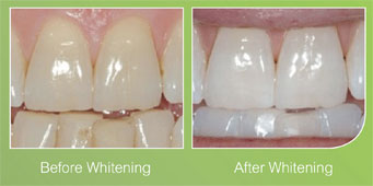 Before & after teeth whitening images