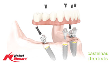What are Dental Implant Dentures (All-on-4)?